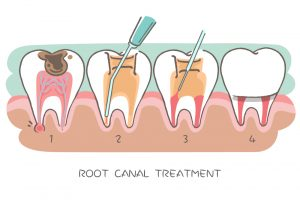 What makes you qualify for a root canal treatment?