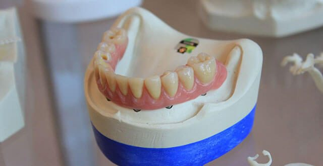 Top Signs You May Have Tooth Decay